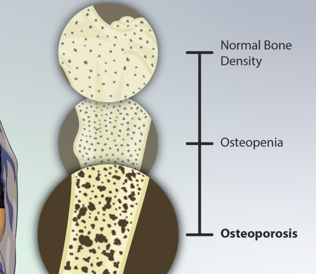 The Link Between Kidney Stones and Osteoporosis …